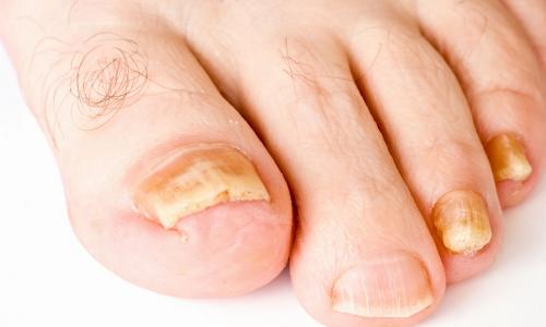 Как лечить грибок ногтей на ногах народными средствами